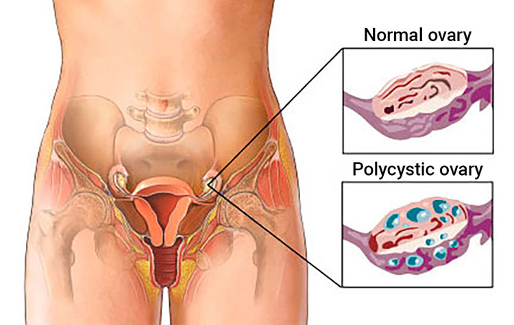 pcos-diagram